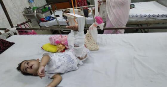 ऐसा क्या हुआ की 11 महीने की बच्ची के साथ Doll को भी चढ़ा प्लास्टर..
